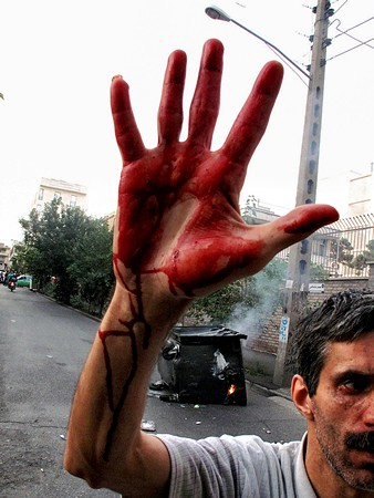 A man with the blood of Neda Agha-Soltan on his hand - 2009